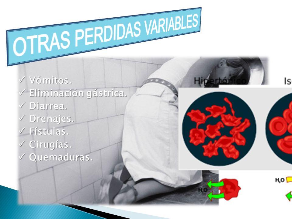 OTRAS PERDIDAS VARIABLES