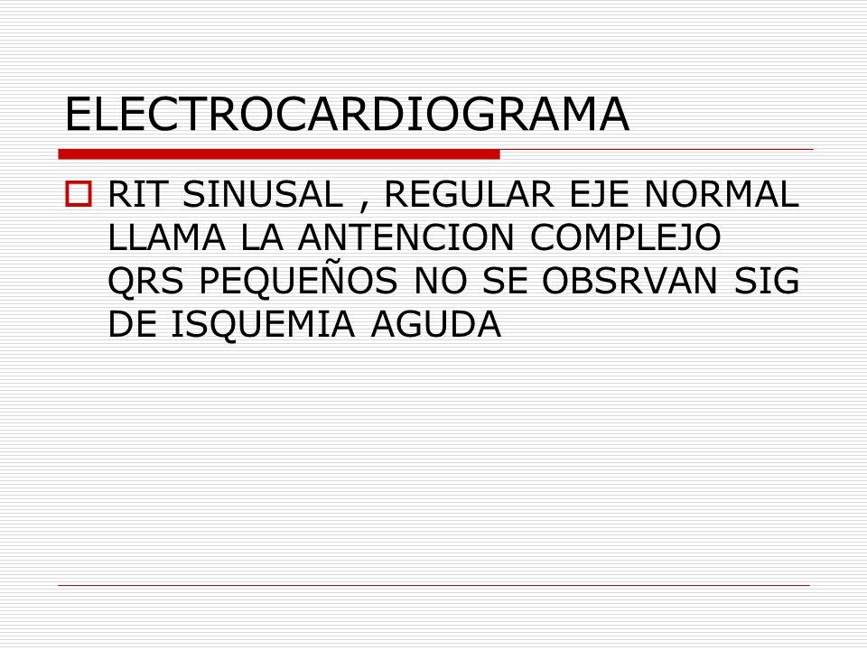 ELECTROCARDIOGRAMA RIT SINUSAL , REGULAR EJE NORMAL LLAMA LA ANTENCION COMPLEJO QRS PEQUEÑOS NO SE OBSRVAN SIG DE ISQUEMIA AGUDA.