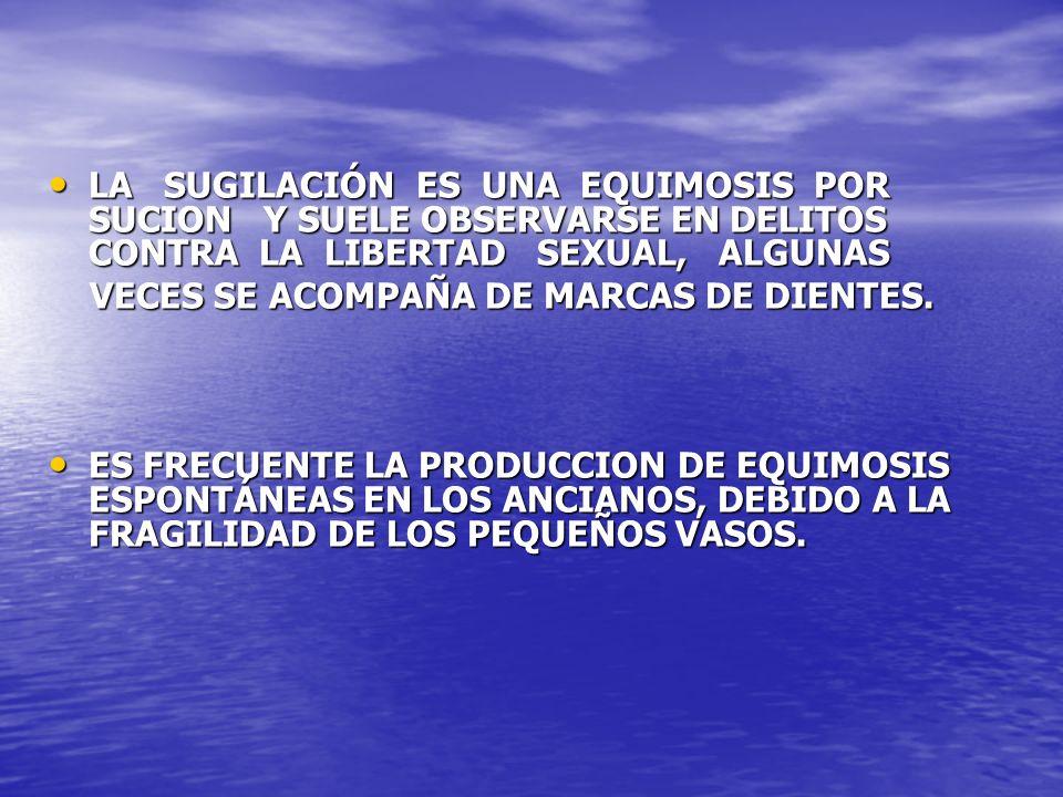 LA SUGILACIÓN ES UNA EQUIMOSIS POR SUCION Y SUELE OBSERVARSE EN DELITOS CONTRA LA LIBERTAD SEXUAL, ALGUNAS