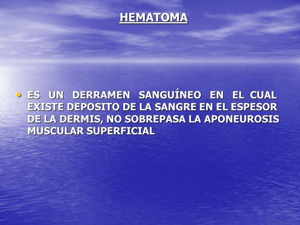 HEMATOMA