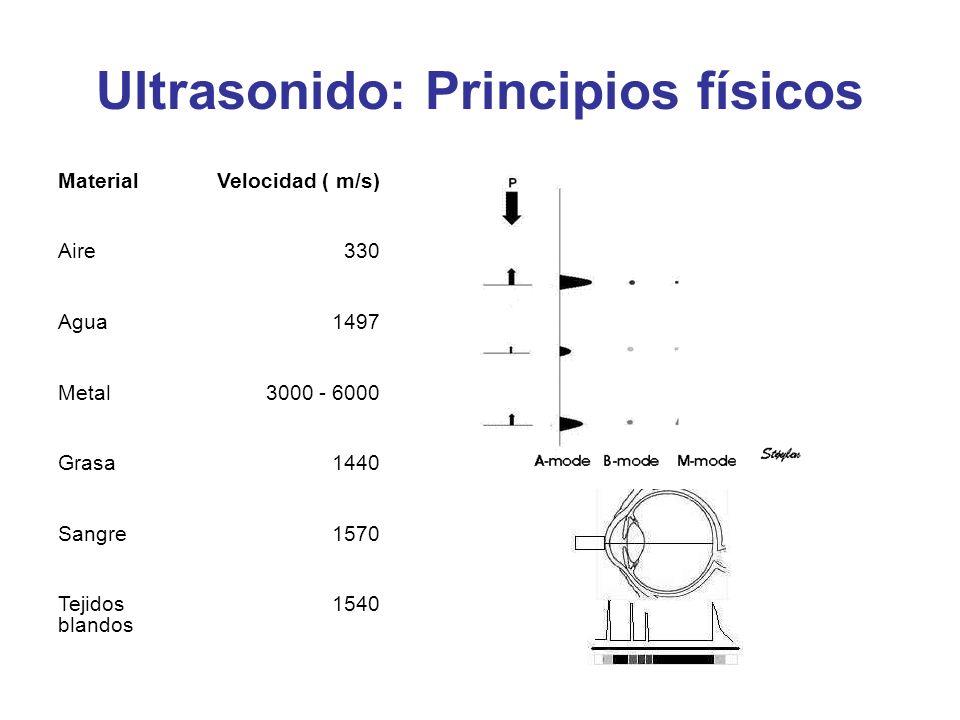 Ultrasonido: Principios físicos