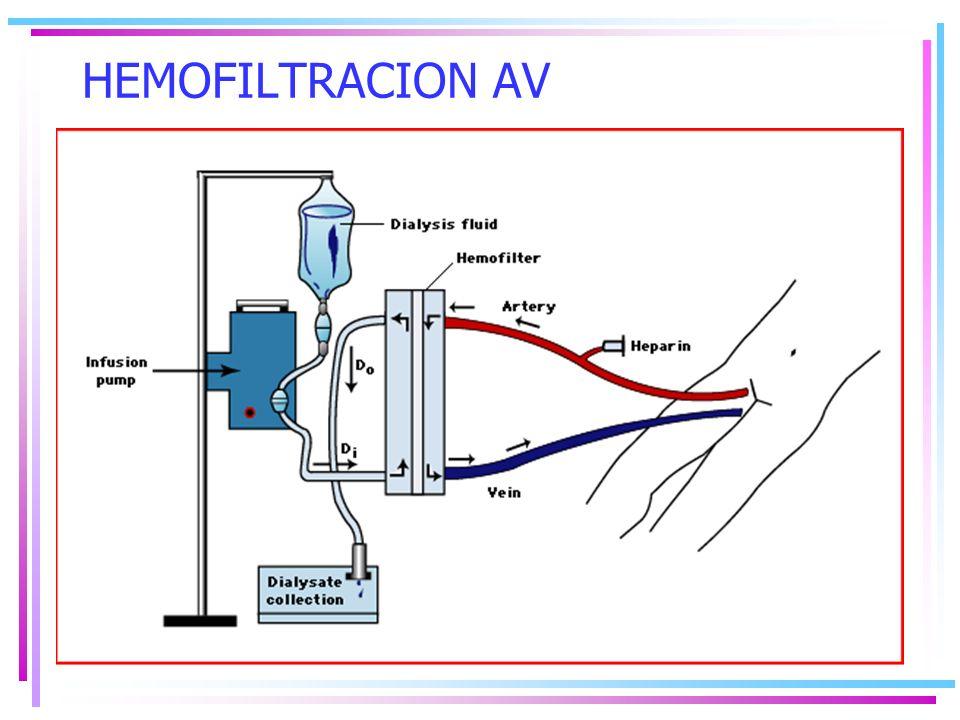 HEMOFILTRACION AV