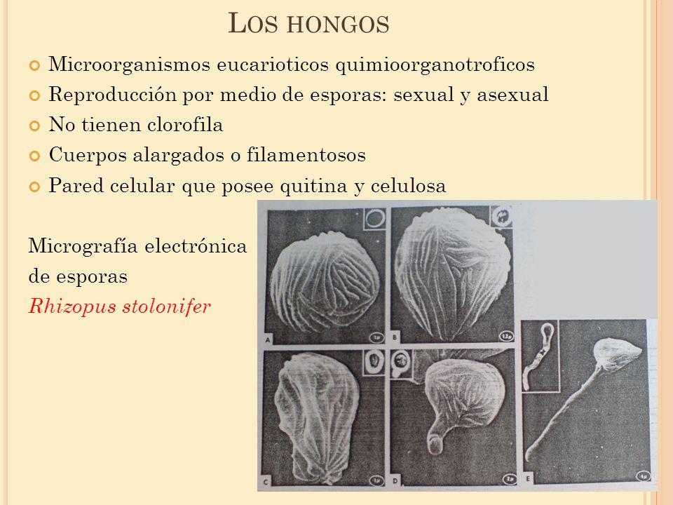 Los hongos Microorganismos eucarioticos quimioorganotroficos