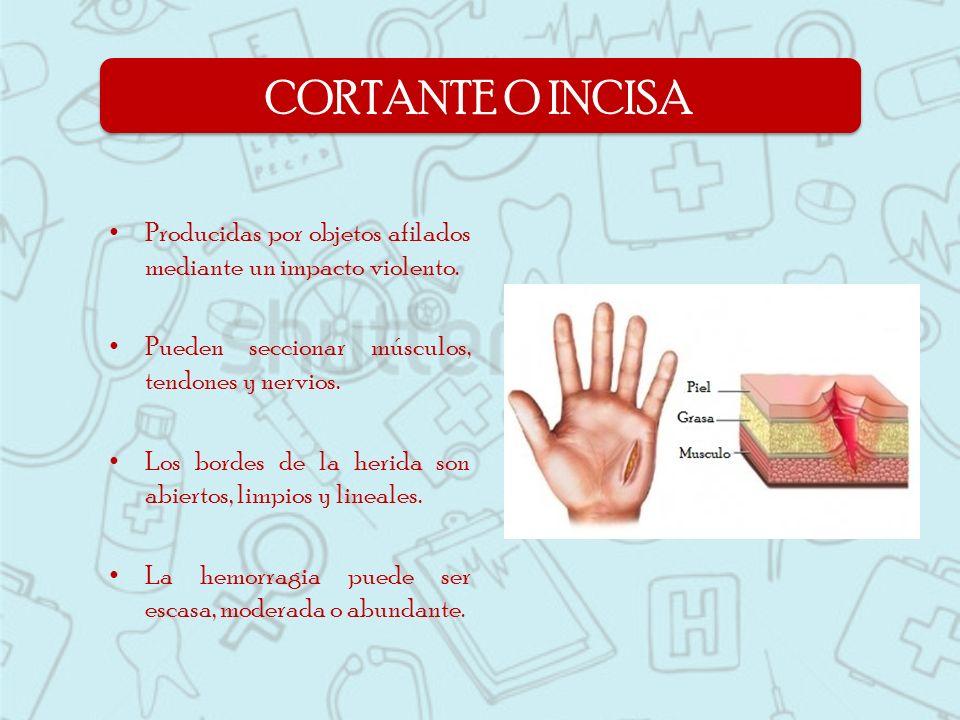 CORTANTE O INCISA Producidas por objetos afilados mediante un impacto violento. Pueden seccionar músculos, tendones y nervios.