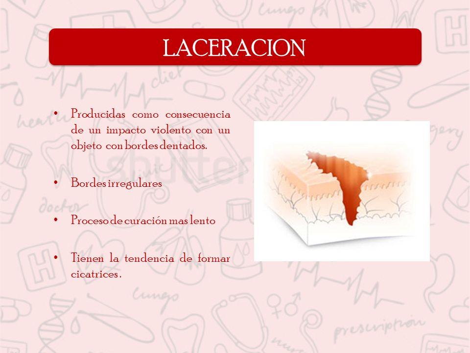 LACERACION Producidas como consecuencia de un impacto violento con un objeto con bordes dentados.