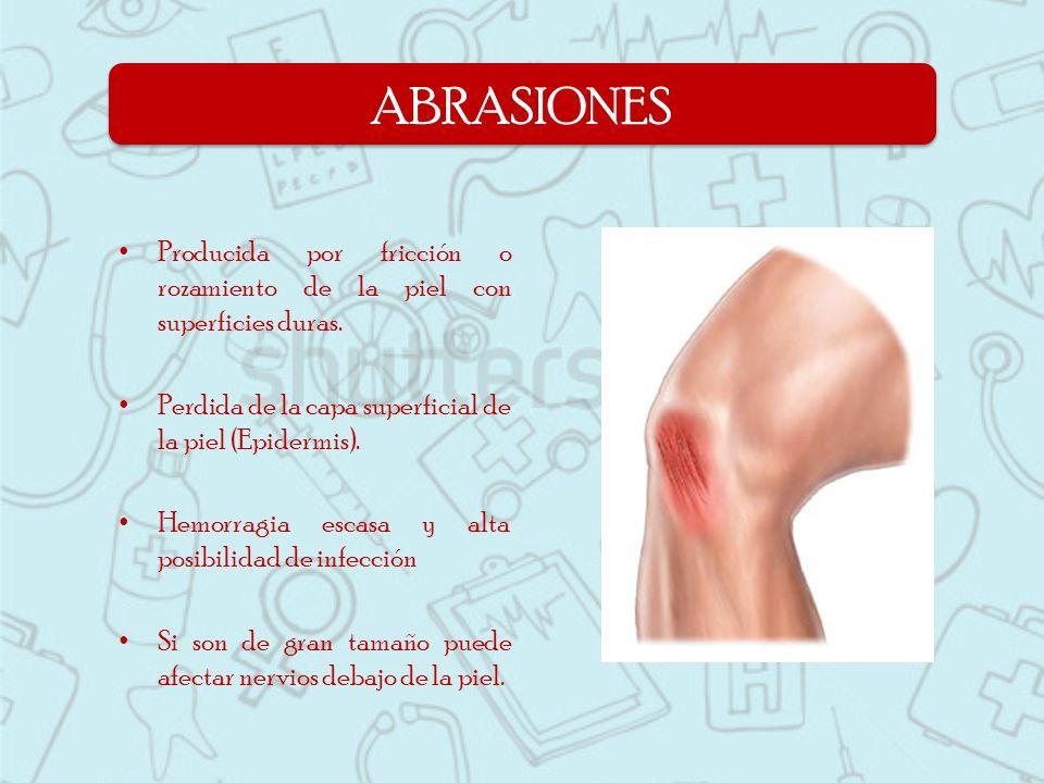 ABRASIONES Producida por fricción o rozamiento de la piel con superficies duras. Perdida de la capa superficial de la piel (Epidermis).