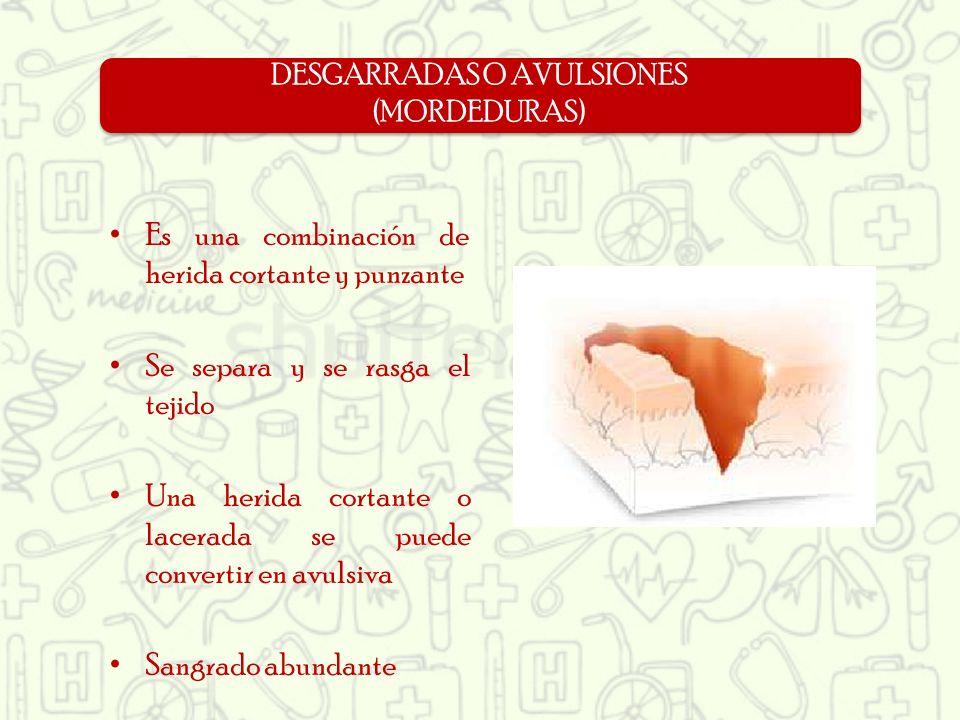 DESGARRADAS O AVULSIONES