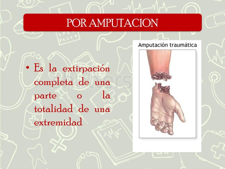 POR AMPUTACION Es la extirpación completa de una parte o la totalidad de una extremidad