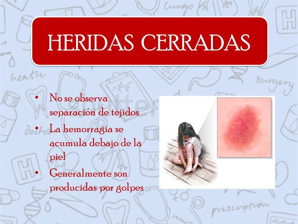 HERIDAS CERRADAS No se observa separación de tejidos