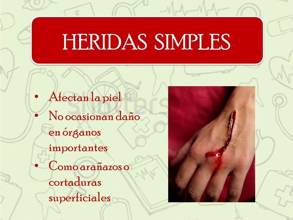 HERIDAS SIMPLES Afectan la piel