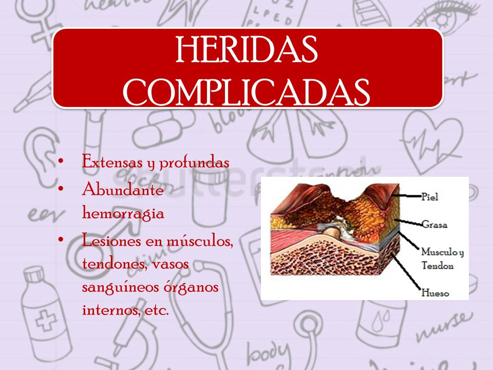 HERIDAS COMPLICADAS Extensas y profundas Abundante hemorragia