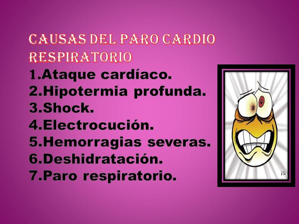 CAUSAS DEL PARO CARDIO RESPIRATORIO 1. Ataque cardíaco. 2