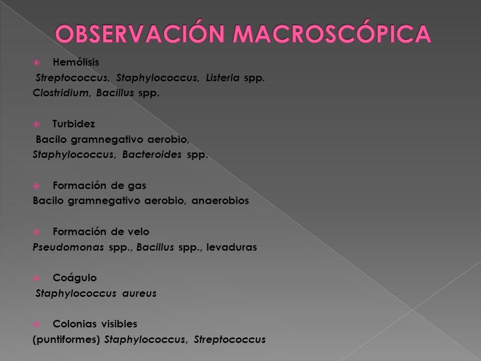 OBSERVACIÓN MACROSCÓPICA