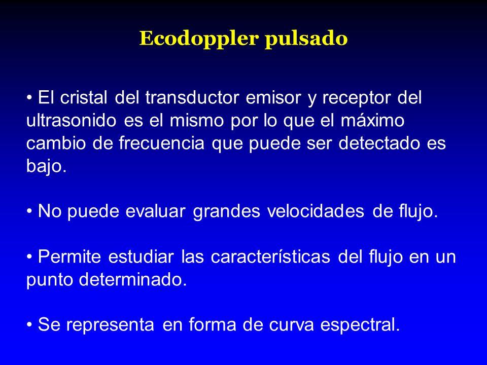 Ecodoppler pulsado