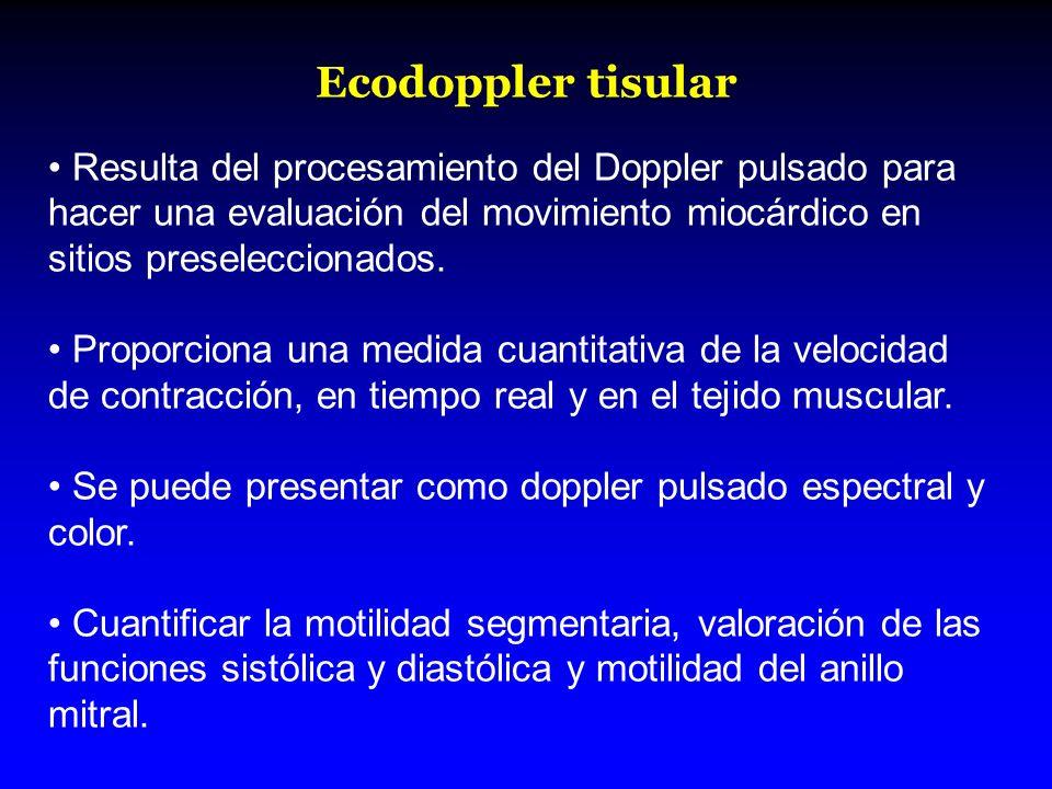 Ecodoppler tisular Resulta del procesamiento del Doppler pulsado para hacer una evaluación del movimiento miocárdico en sitios preseleccionados.