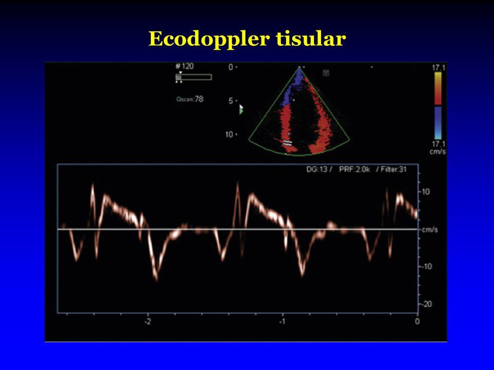 Ecodoppler tisular