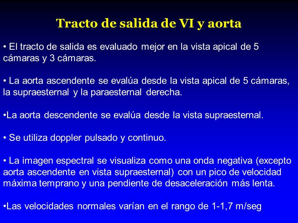 Tracto de salida de VI y aorta