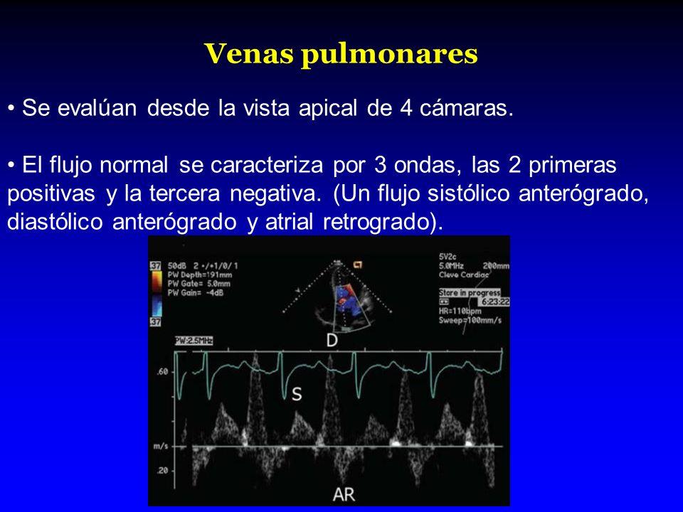 Venas pulmonares Se evalúan desde la vista apical de 4 cámaras.