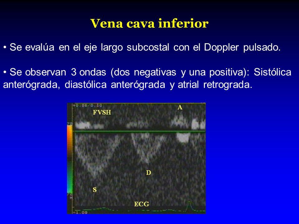 Vena cava inferior Se evalúa en el eje largo subcostal con el Doppler pulsado.