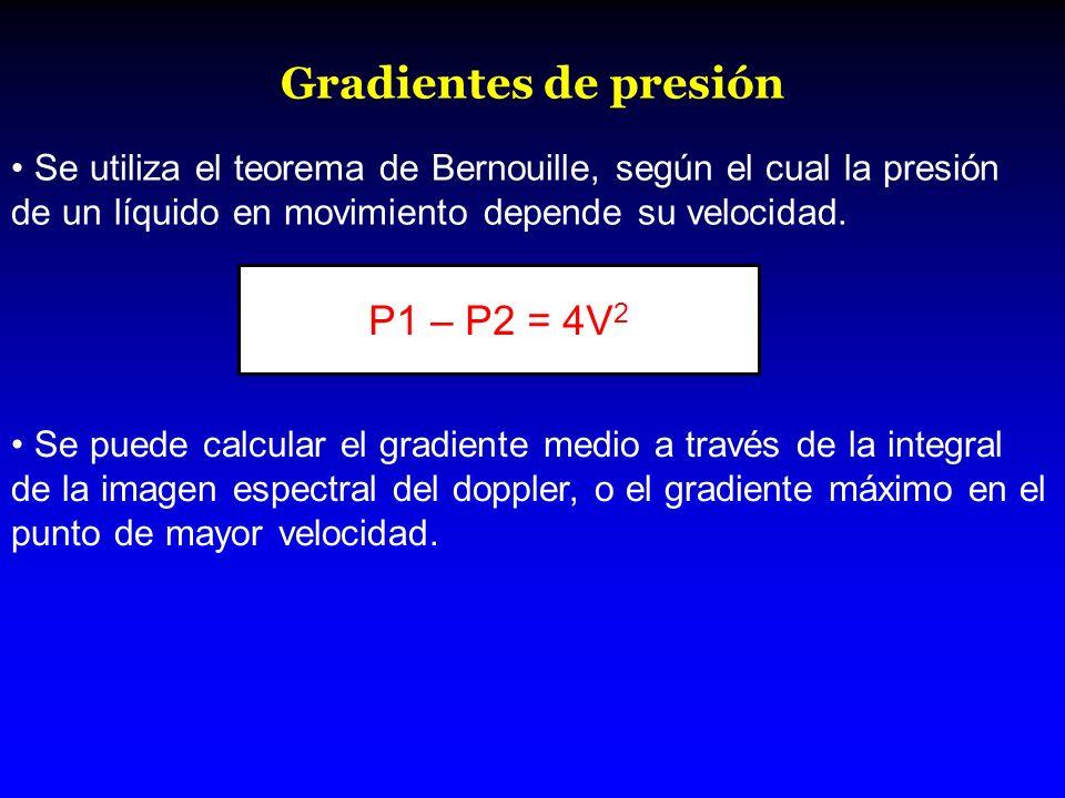 Gradientes de presión P1 – P2 = 4V2