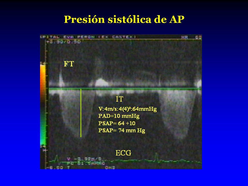 Presión sistólica de AP