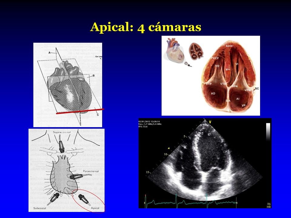 Apical: 4 cámaras