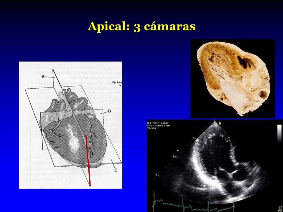 Apical: 3 cámaras