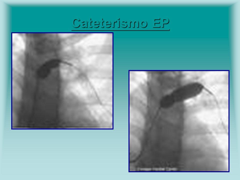 Cateterismo EP