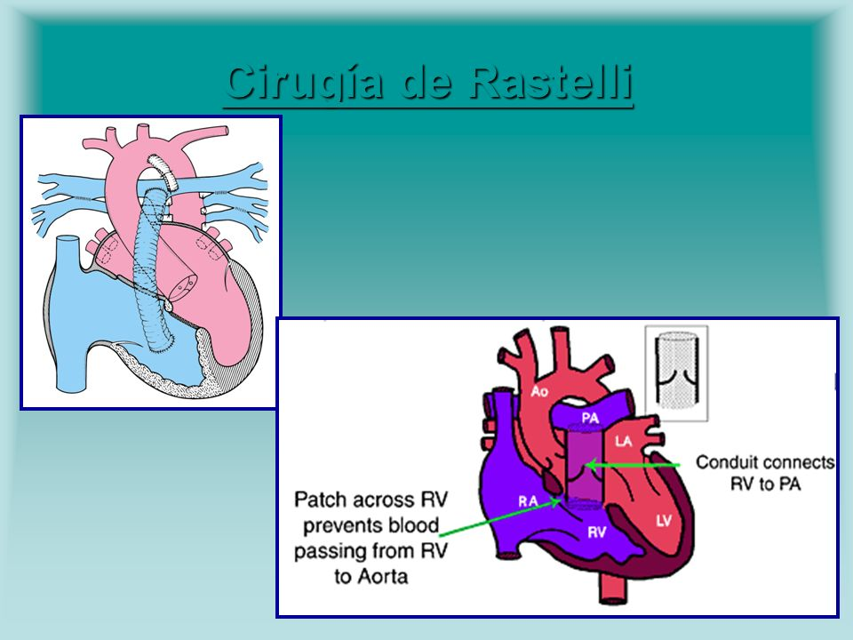 Cirugía de Rastelli