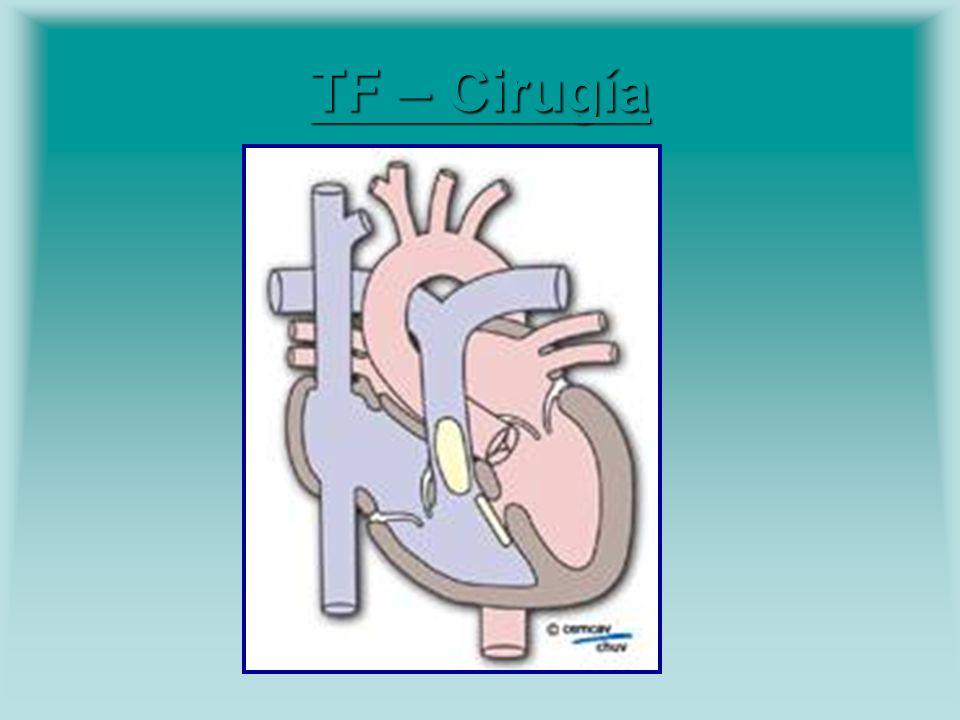 TF – Cirugía