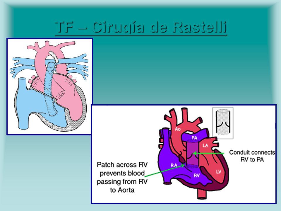 TF – Cirugía de Rastelli