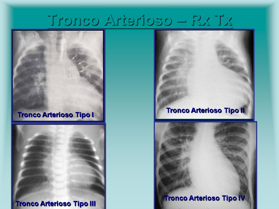 Tronco Arterioso – Rx Tx