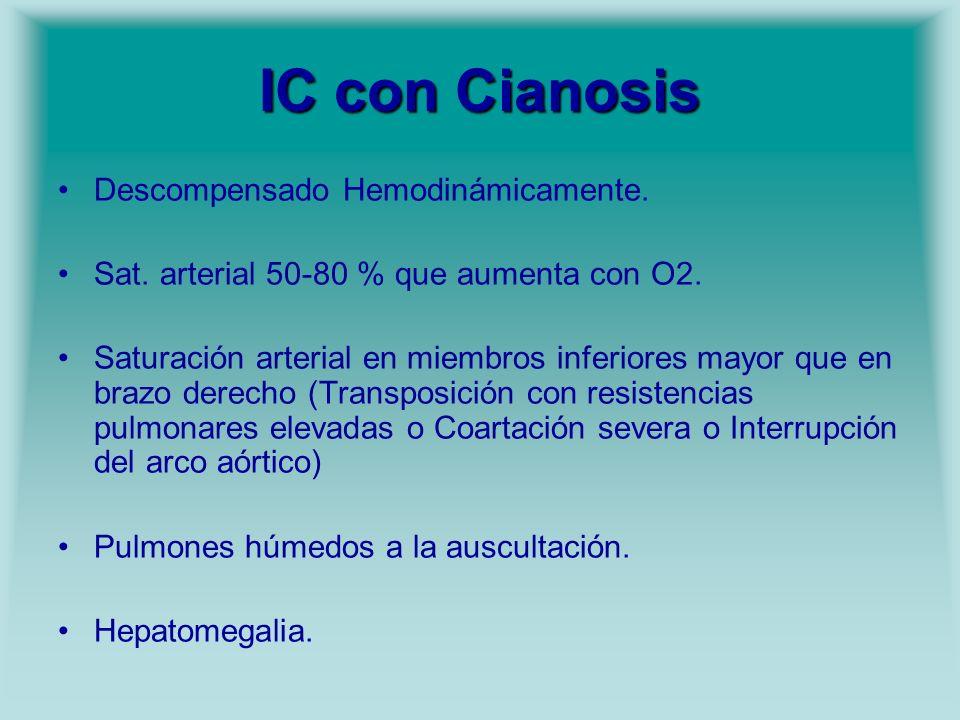 IC con Cianosis Descompensado Hemodinámicamente.