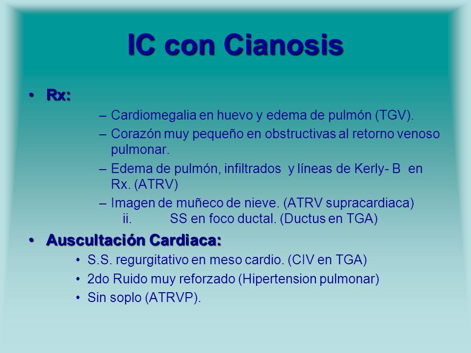 IC con Cianosis Rx: Auscultación Cardiaca: