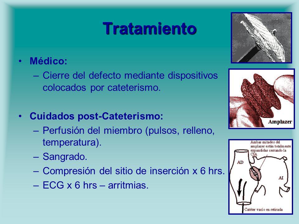 Tratamiento Médico: Cierre del defecto mediante dispositivos colocados por cateterismo. Cuidados post-Cateterismo: