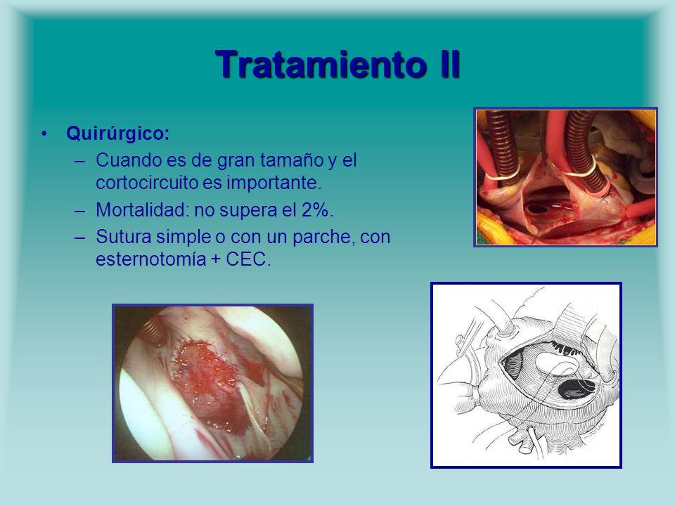 Tratamiento II Quirúrgico: