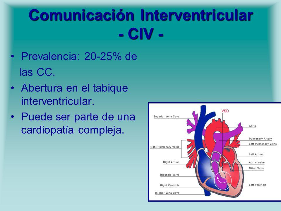 Comunicación Interventricular - CIV -
