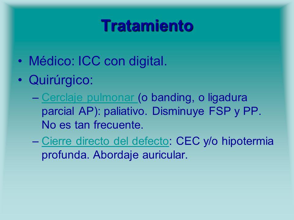 Tratamiento Médico: ICC con digital. Quirúrgico: