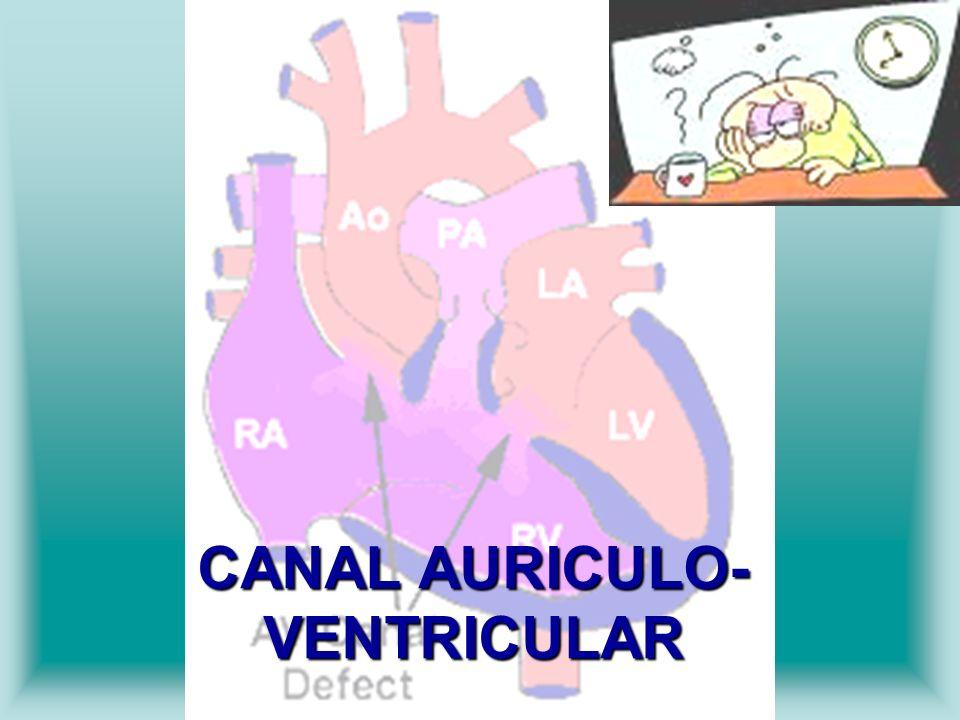 CANAL AURICULO-VENTRICULAR