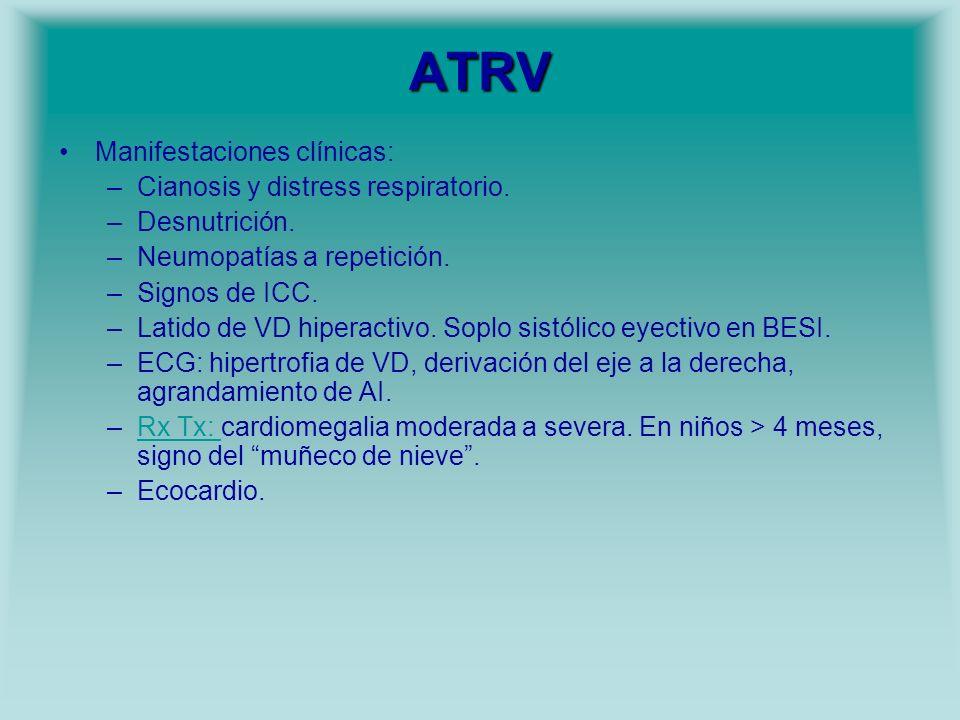 ATRV Manifestaciones clínicas: Cianosis y distress respiratorio.