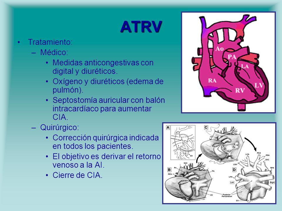 ATRV Tratamiento: Médico: