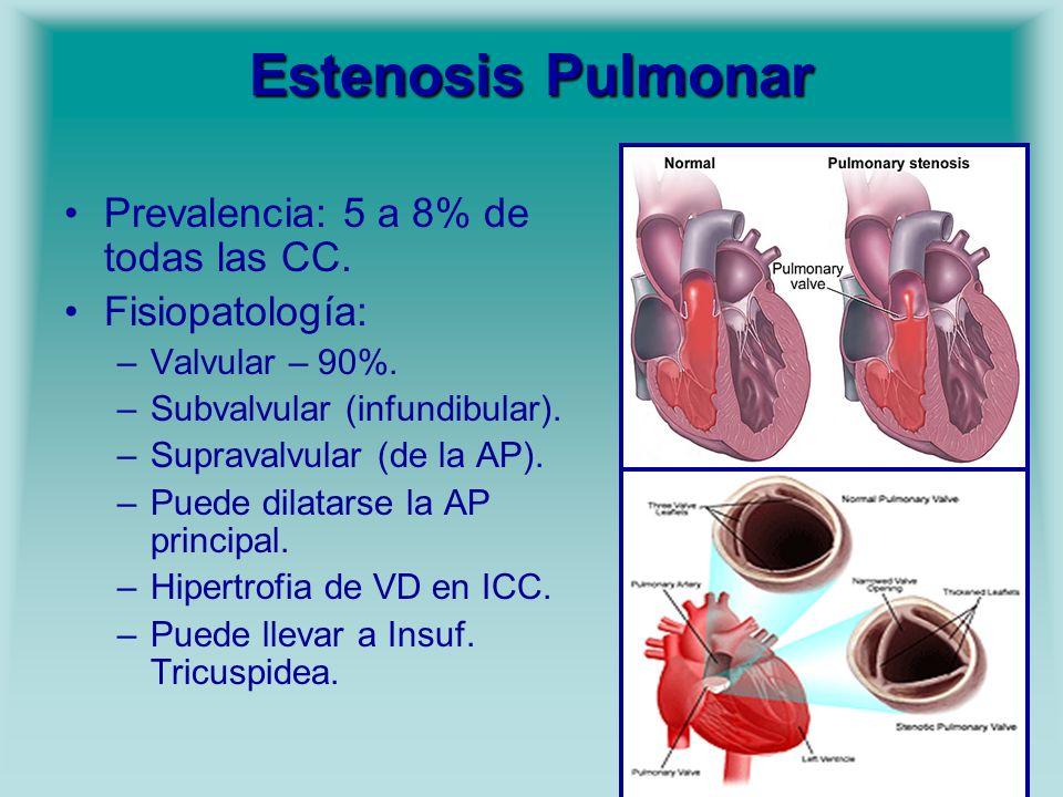 Estenosis Pulmonar Prevalencia: 5 a 8% de todas las CC.