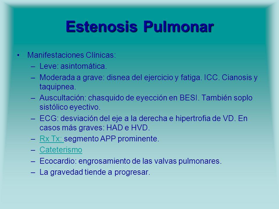 Estenosis Pulmonar Manifestaciones Clínicas: Leve: asintomática.