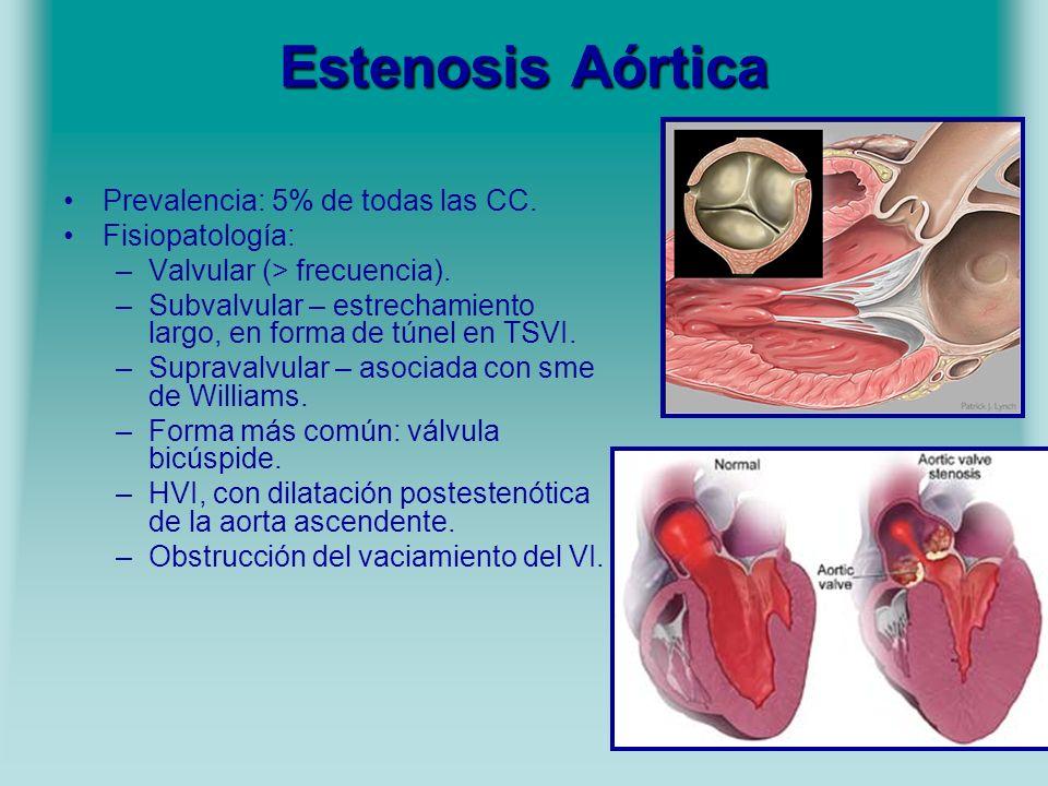 Estenosis Aórtica Prevalencia: 5% de todas las CC. Fisiopatología: