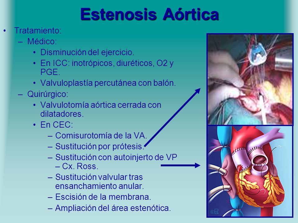 Estenosis Aórtica Tratamiento: Médico: Disminución del ejercicio.
