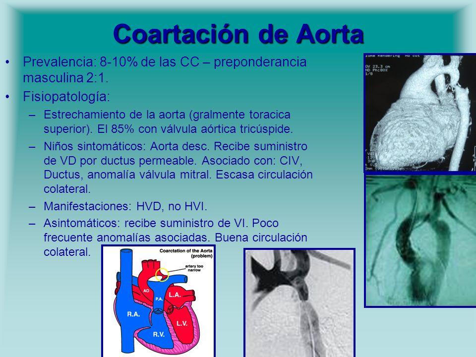 Coartación de Aorta Prevalencia: 8-10% de las CC – preponderancia masculina 2:1. Fisiopatología: