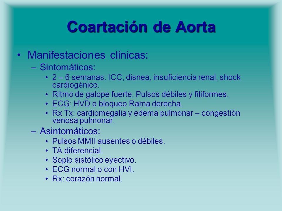 Coartación de Aorta Manifestaciones clínicas: Sintomáticos: