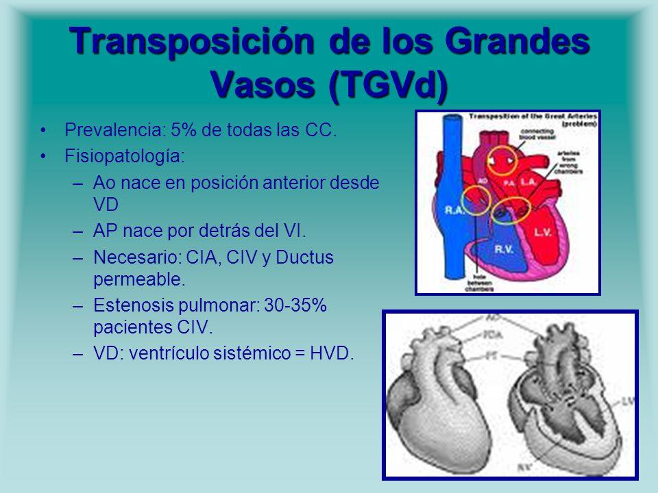 Transposición de los Grandes Vasos (TGVd)