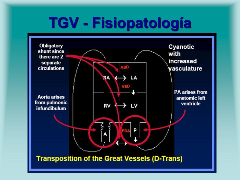 TGV - Fisiopatología
