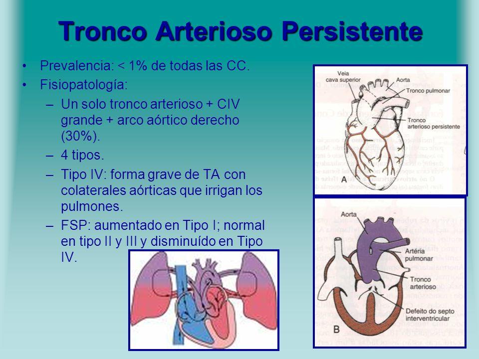 Tronco Arterioso Persistente